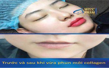 Phun môi và xăm môi khác nhau thế nào?aaaaaaaaaaaa
