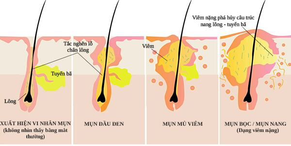 08 Prestigious Acne Treatment In HCMC Favorite Ladies - Top 3 most reputable acne treatment places in Ho Chi Minh City