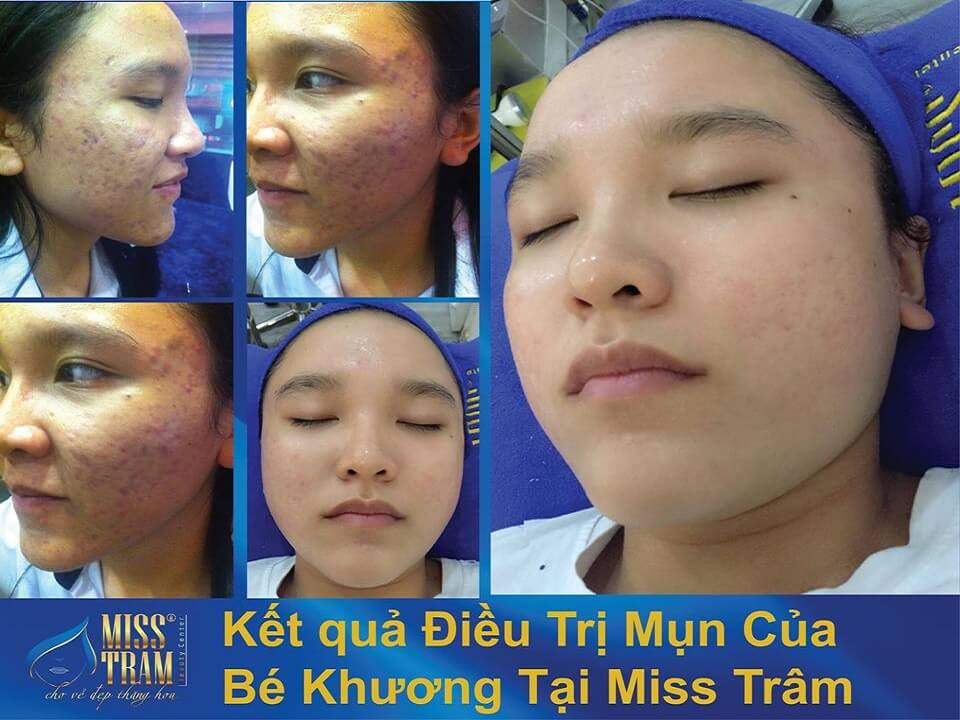 Quy Trình Chữa Mụn Da Liễu Độc Quyền Tại Miss Tram 6