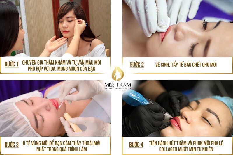 Hút Thâm Phun Môi Collagen Vi Chạm Cho Nữ 5