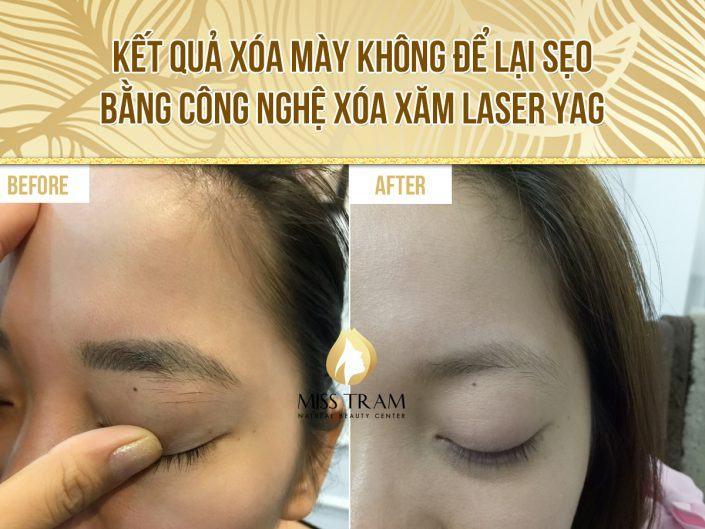 Kết quả xóa mày không để lại sẹo bằng công nghệ Laser Yag – Chị Trinh