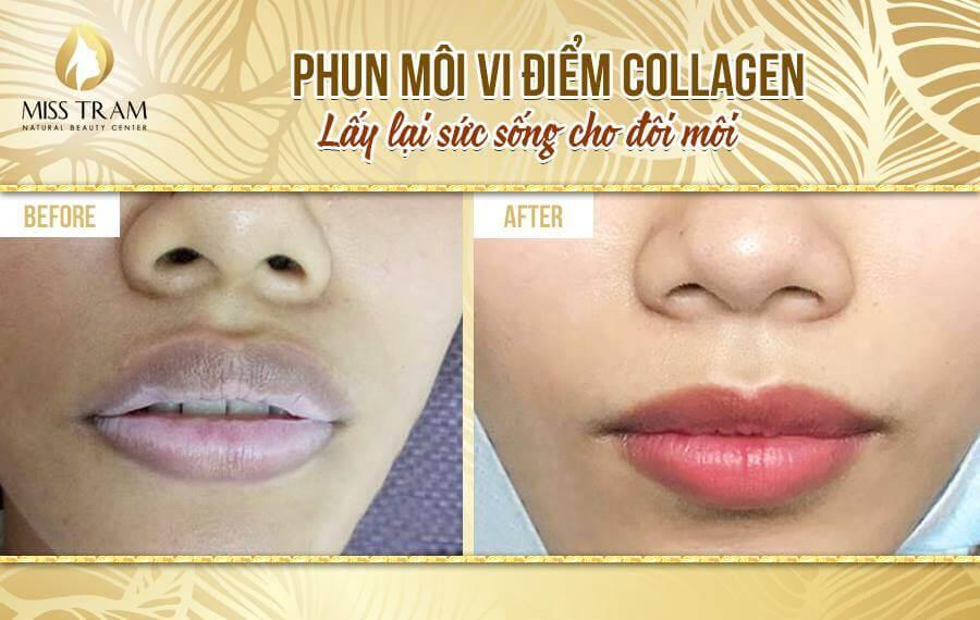 Phun Môi Collagen - Kỹ Thuật Phun Xăm Môi Hiện Đại