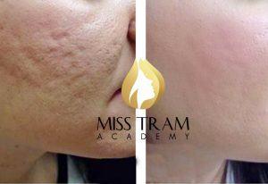 Bí quyết phục hồi da bị sẹo rỗ an toàn và hiệu quả 3