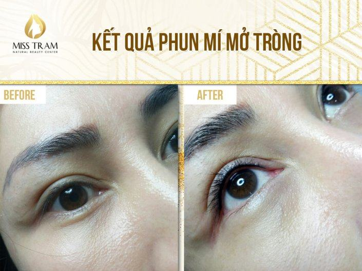 The results of eyelid spraying opened at Miss Tram - Natural Beauty Center