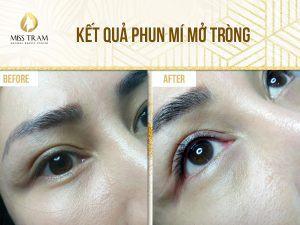 Cần làm gì khi bị sưng mí mắt