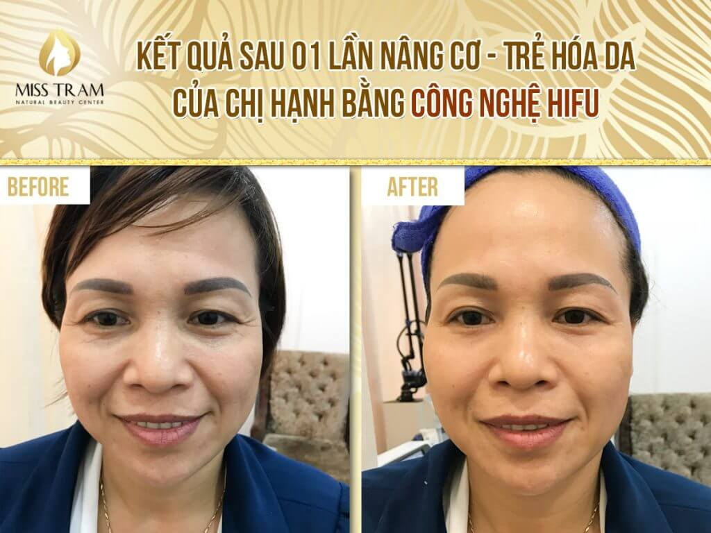 Kết quả trẻ hóa da của chị Hạnh bằng công nghệ Hifu tại Miss Tram – Natural Beauty Center