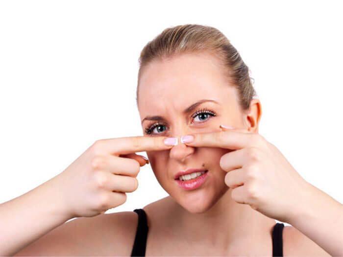 Cách chăm sóc da mặt bị sẹo rỗaaaaaaaaaaaa