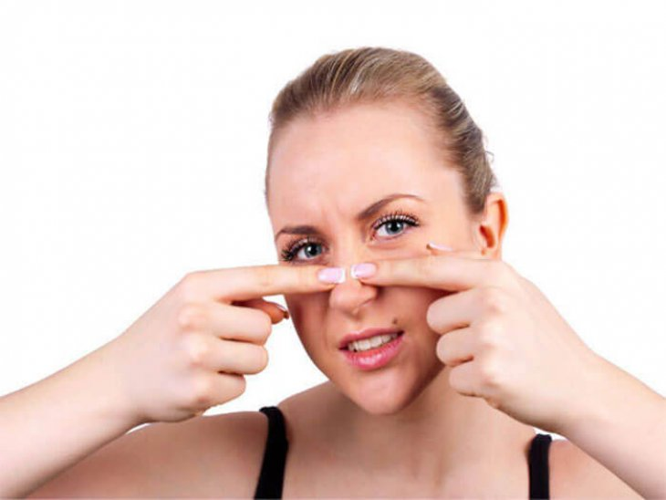 Cách chăm sóc da mặt bị sẹo rỗ