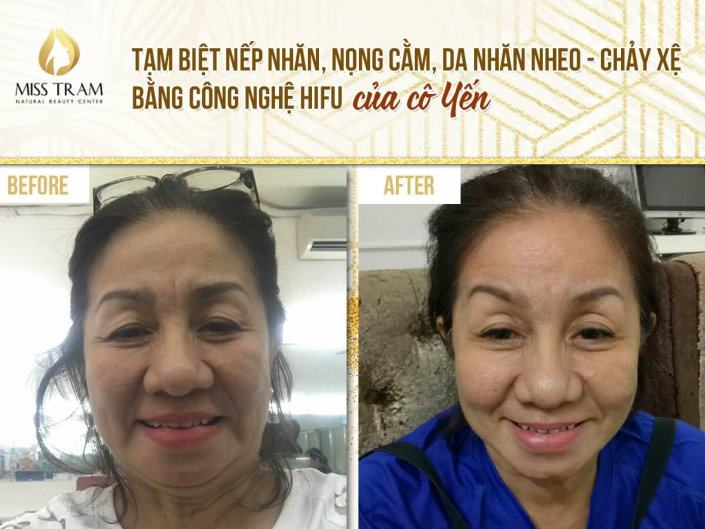 Wrinkle Removal, Chin Wrinkle, Wrinkled Skin - Run Loose with Hifu Technology