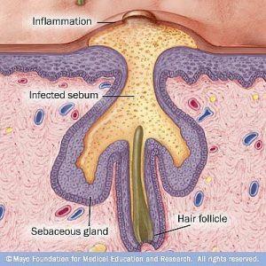 Nguyên nhân gây mụn mạch lươn