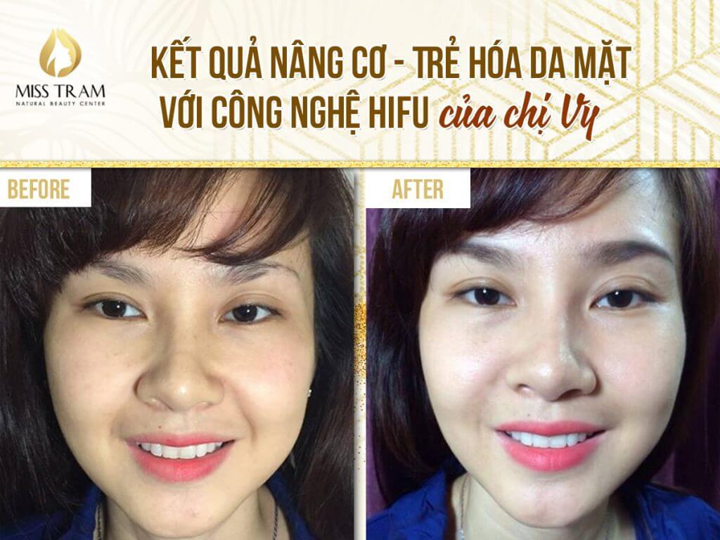 Kết quả Nâng cơ – Trẻ hóa da mặt với công nghệ Hifu của chị Vy tại Miss Tram – Natural Beauty Center