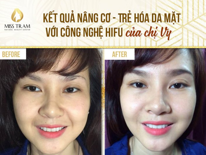 Results Lifting - Skin rejuvenation with Hifu technology