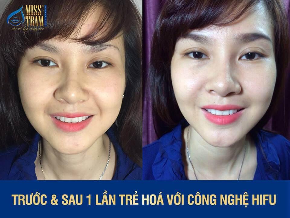 Dịch Vụ Nâng Cơ - Xóa Nhăn Bằng Công Nghệ Hifu S+ 2