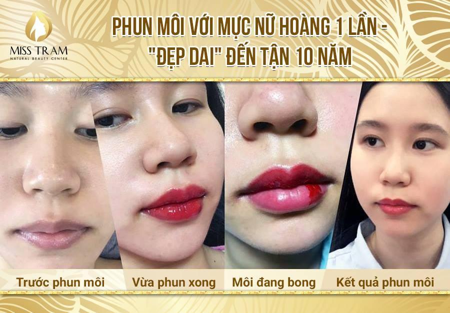 Kết quả phun môi đẹp tại Miss Tram