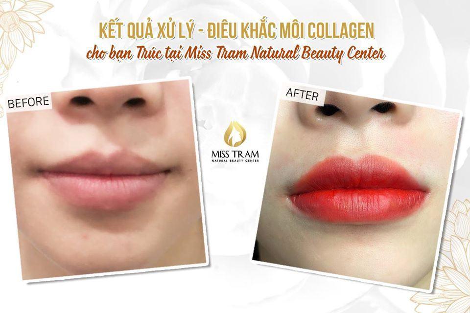 phun môi collagen đẹp
