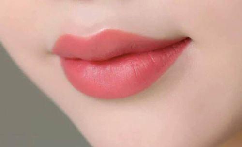 Phương pháp phun môi collagen