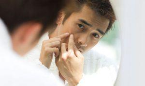 Cách điều trị mụn đầu đen cho nam 3