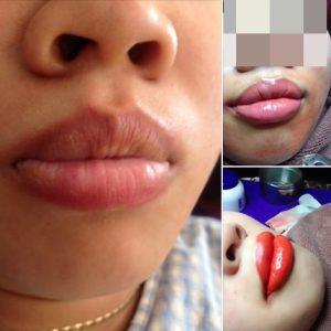 Nguyên nhân gây phun môi bị loang lổ