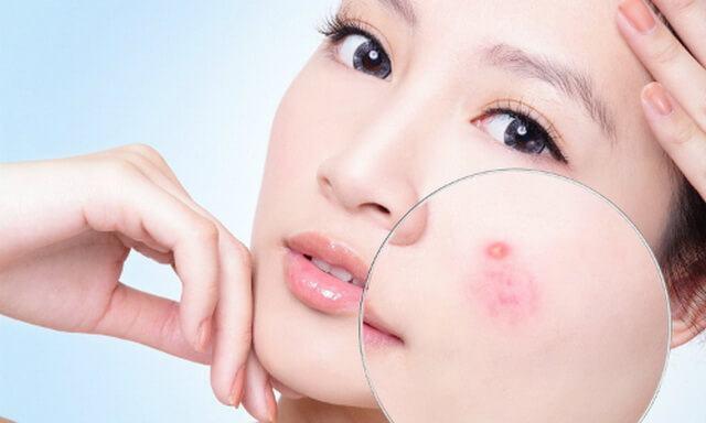Tiết lộ 3 cách đẩy mụn ẩn dưới da lên hiệu quả 3