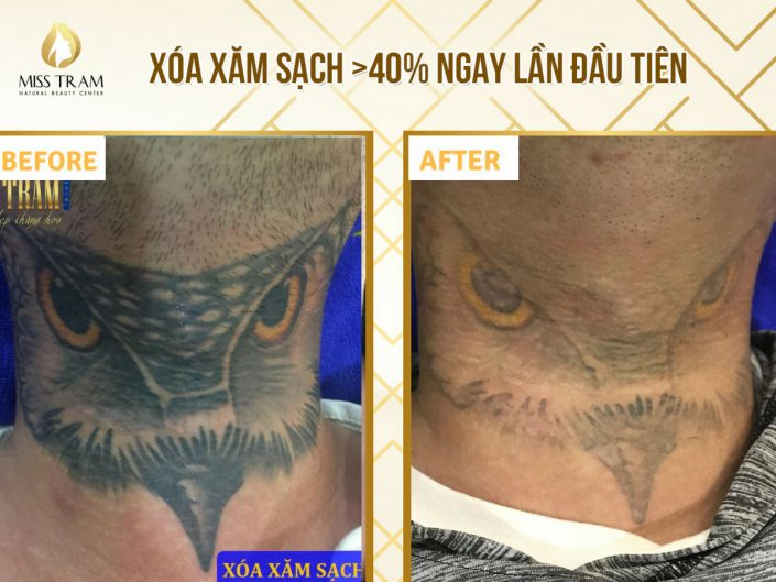 Technology for erasing tattoos clean on 40% right the first time