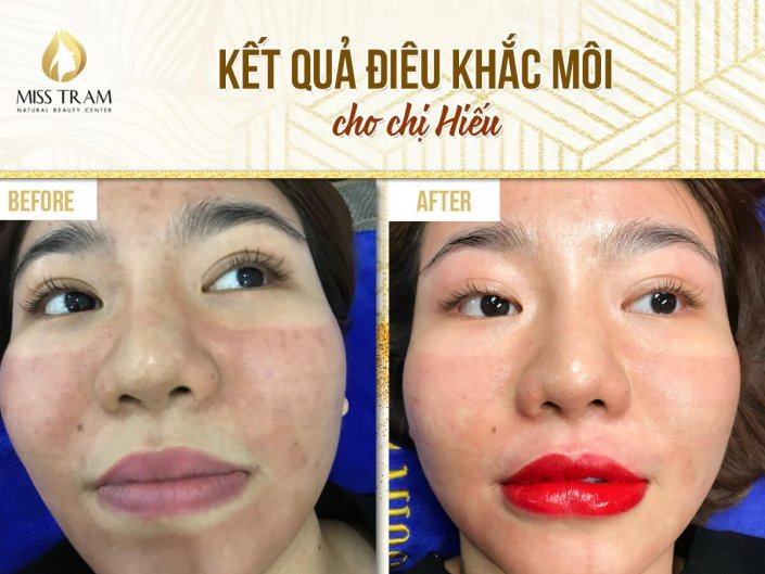 The Result Photo of Sister Hieu Sculpting Lips At Spa