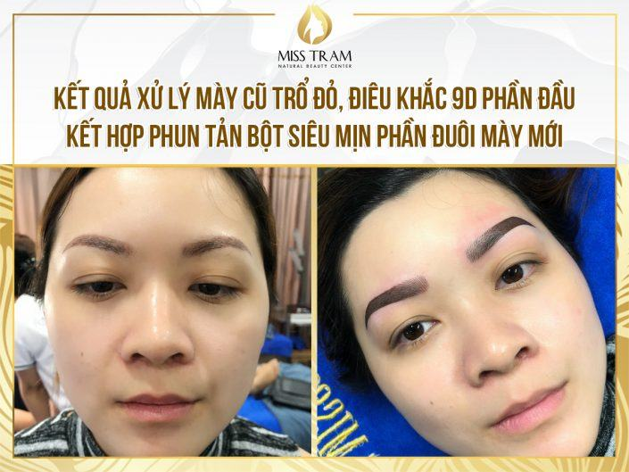 Treatment of Red Eyebrow Sculpting - Sculpting with 9D Fiber Head and Spraying with Tail