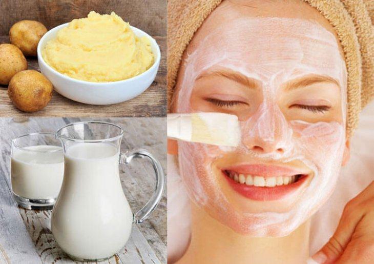 Cách Làm Mặt Nạ Khoai Tây Sữa Chua Cho Da Nhờn