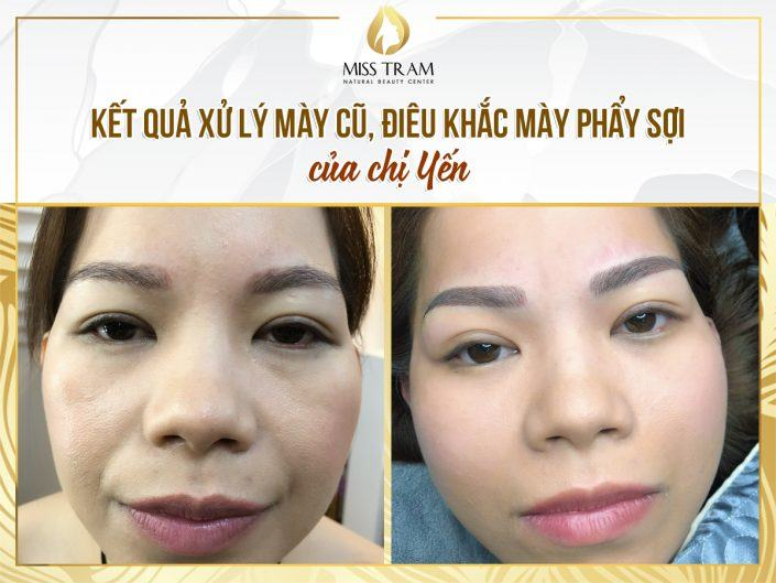 Old Eyebrow Treatment - Scraping Scales For Ms. Yen