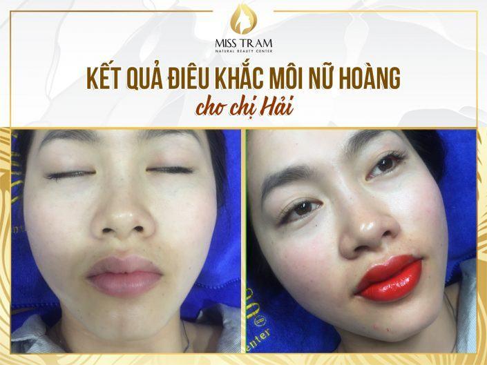 Chị Hải Điêu Khắc Môi Mực Nữ Hoàng Tại Miss Tram Natural Beauty Center