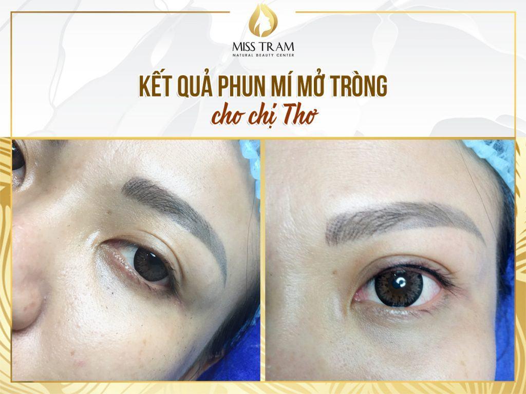 Chị Thơ phun mí mở tròng – cho đôi mắt đẹp lung linh