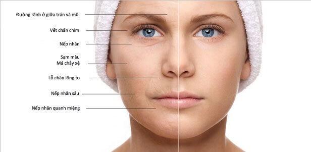 Cách chống lão hóa da mặt từ thiên nhiên 3