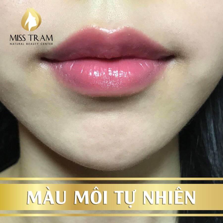 Hút Thâm Phun Môi Collagen Vi Chạm Cho Nữ 13