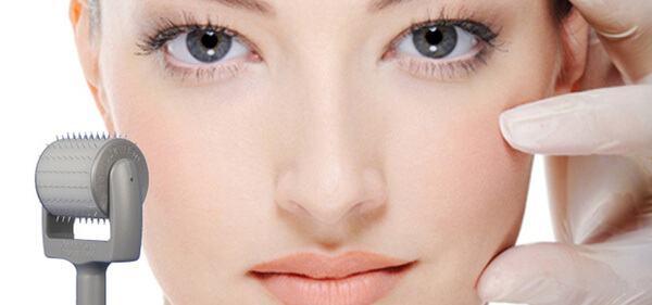 Trị sẹo rỗ bằng collagen có thật sự hiệu quả? 5