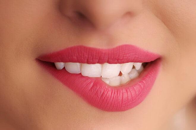 Trong thời gian môi có filler có phun môi được không 3