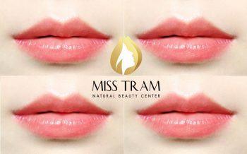 Quy Trình Phun Môi Hồng Baby Tại Miss Tram – Natural Beauty Centeraaaaaaaaaaaa