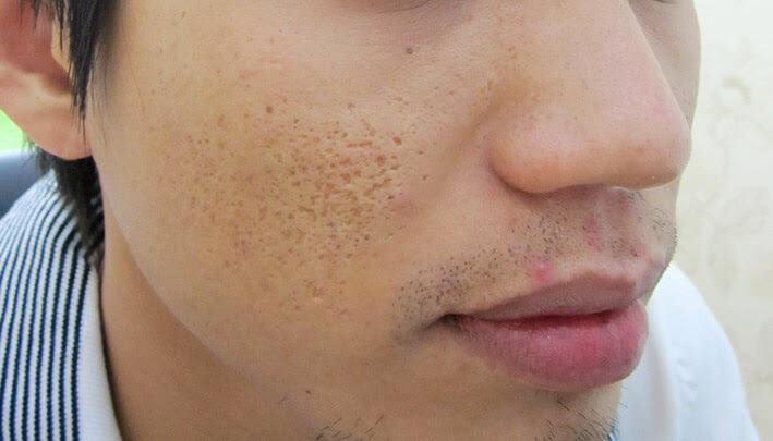 Phương pháp trị sẹo rỗ bằng cấy da siêu vi điểm 3