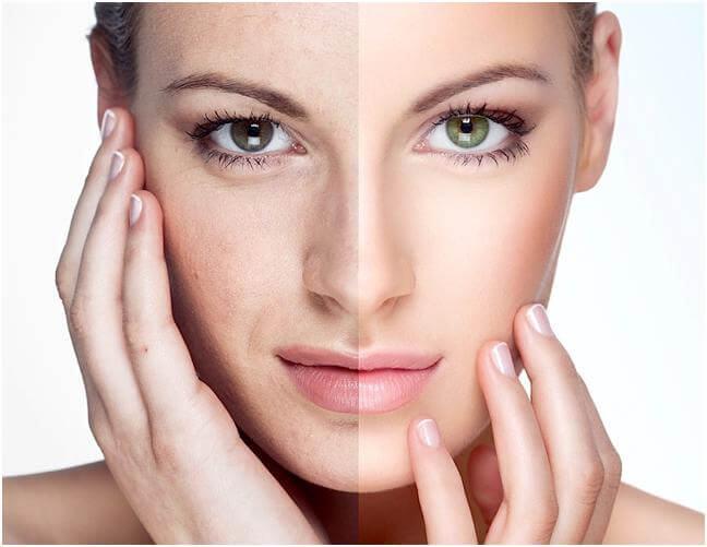 Dấu hiệu lão hóa da và phương pháp trẻ hóa da an toàn, hiệu quả nhất
