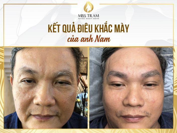 Kết Quả Điêu Khắc Mày Phẩy Sợi Nam Cho Anh Long Tại Thẩm Mỹ Miss Tram