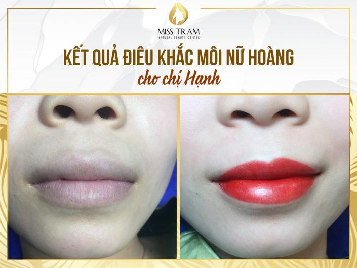 Results of sculpting lips of the Queen at Miss Tram for Ms. Hanh