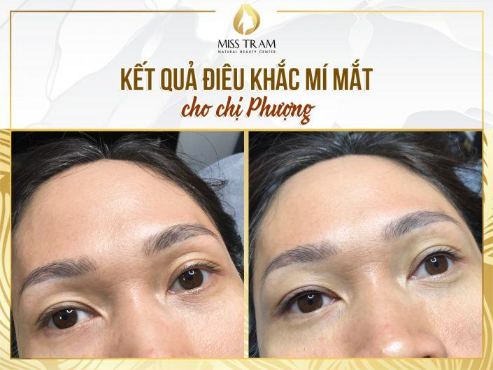 The Photo Result of Beautiful Eyelid Sculpture For Ms. Phuong