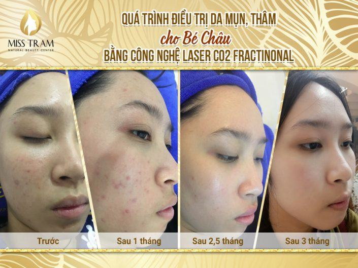 Acne Treatment, Penetration for Chau Baby With Fractional CO2 Laser Technology