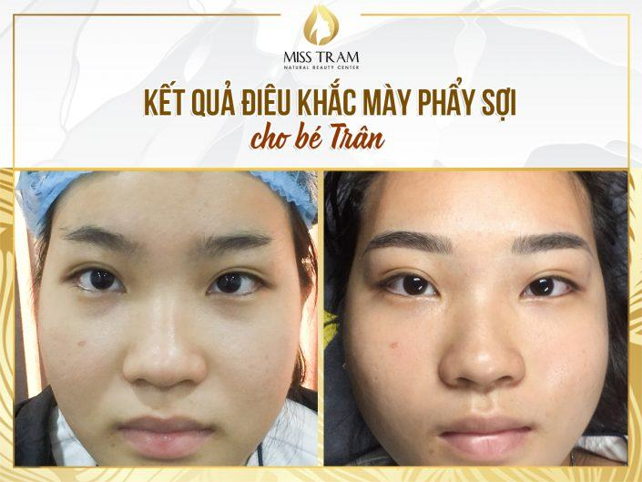 Before And After Results Sculpting You For Baby Tran