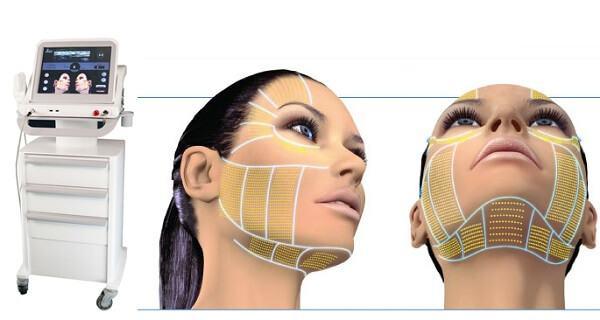 Công nghệ nâng cơ da mặt an toàn, hiện đại