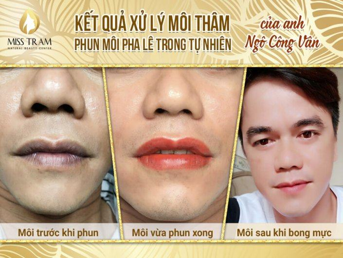 Image Of Results Of Crystal Lip Spray In Nature For Mr. Cong Van