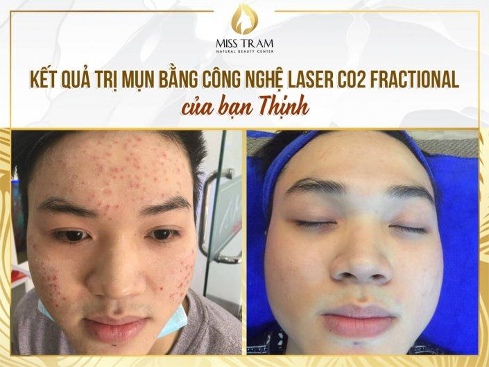 Acne Treatment Results With Fractional CO2 Laser Technology For You Thinh