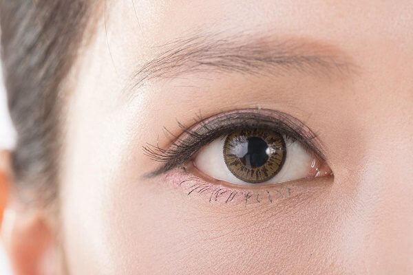 Cách xử lý khi mí mắt trỗ xanh an toàn, hiệu quả