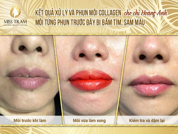 Results of Spraying Queen Collagen's Lip by Ms. Hoang Anh