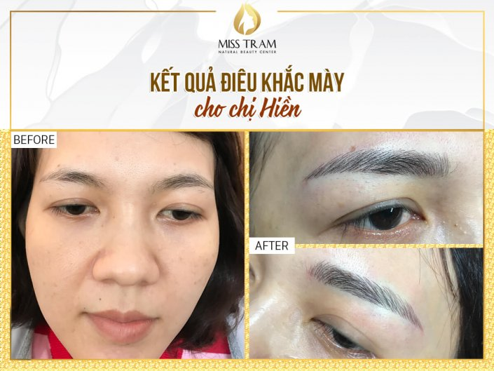 Ms Hien Beautifies Her Eyebrow With Scraping Sculpting Technology