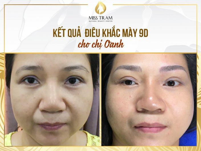 The Result of Shaping You, Sculpting You 9D For Ms. Oanh