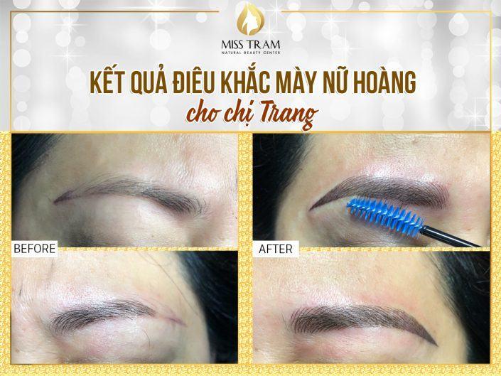 Kết Quả Điêu Khắc Mày Nữ Hoàng Cho Chị Trang Tai Miss Tram
